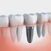 Протезирование после удаления зуба
