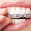 Зачем нужно выравнивание зубов?