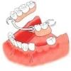 Преимущества проведения протезирования зубов