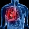 Иммунотерапия рака лёгких. Успешное лечение в Израиле