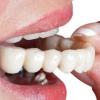Гибкие гипоаллергенные нейлоновые протезы для зубов
