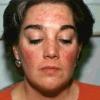 Капилляры на лице: методы лечения
