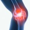 Лечение артрита суставов
