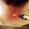 Ликвидация шрамов – это трудоемкая процедура. Выполняется она с помощью инструментов лазерной космет