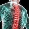 Изолированные переломы дужек позвоночника