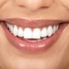 Технология отбеливания зубов Blanche et Brillante в Центре пластической хирургии доктора Пуценко