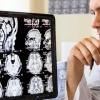 Что представляет собой МРТ головного мозга