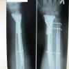 Перелом руки: основные симптомы, обращение к врачу