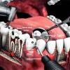 Лечение заболеваний зубов – вылечить кариес в любой форме его развития, рядом с домом