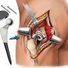 Что представляет собой искусственный тазобедренный сустав?