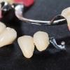 Современные способы протезирования зубов в стоматологии