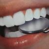 Где качественно вылечить зубы в Санкт-Петербурге?