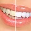 Отбеливание зубов в клиниках Эверест – оживите свои зубы!