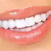 Методики отбеливания зубов