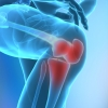 Лечение артроза коленного сустава