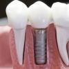 Экспресс-методы имплантации зубов