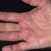 Самые распространенные болезни кожи