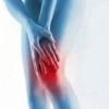 Терафлекс приносит облегчение при болях в суставах!