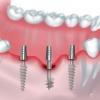 Базальная имплантация: за и против, ее плюсы и минусы