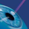 Преимущества и недостатки лазерной коррекции
