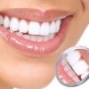 Виниры – новое слово в стоматологии