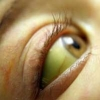 Гепатит С: диагноз или приговор?