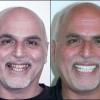 Имплантация зубов — залог красивой улыбки