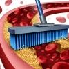 Очистка сосудов от холестериновых бляшек