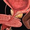 Рак предстательной железы – опасное заболевание