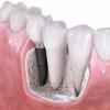 Сколько приживается зубной имплант