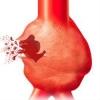Аневризма аорты: заболевание коварное и очень опасное