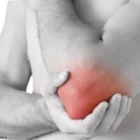 Бурсит сустава: принципы лечения