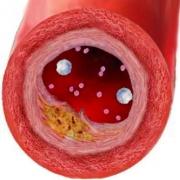 Возникновение хронического остеопороза