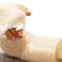Омские врачи научились лечить переломы без гипса