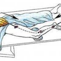 Тромбофлебит вен и его лечение
