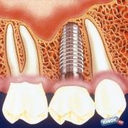 Будущее стоматологии - имплантанты