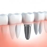 Зубные импланты. Разновидности, преимущества и стоимость.
