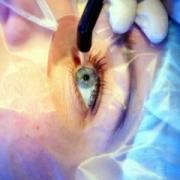 В лабораторных условиях выращен человеческий глаз