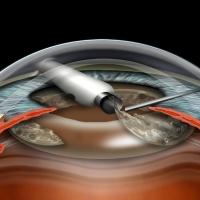 Основные этапы факоэмульсификации катаракты