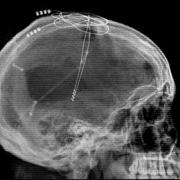Клиническое течение черепно-мозговых травм