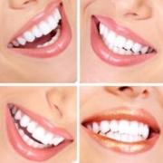 Как отбеливает зубы система Zoom 3