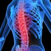 Клиника УльтраМед:  новое  в лечении позвоночника