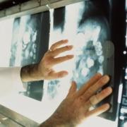 Диагностировать рак в Омске будут быстрее