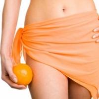 Способы лечения целлюлита