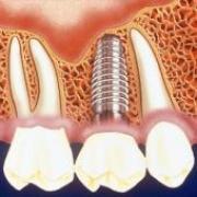 От чего зависит цена на имплантацию зубов?