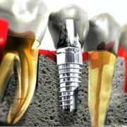 Имплантация зубов, преимущества процедуры