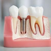 Протезирование зубов и их виды