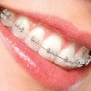 Возможности стоматологии – для вашего здоровья