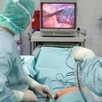 Лапароскопическая технология в хирургии толстой кишки: размышления