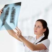 Больных туберкулезом в Омской области стало меньше